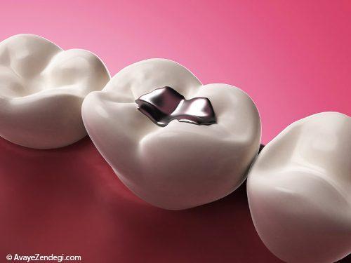 در چه سنی پوسیدگی دندان متوقف می شود؟