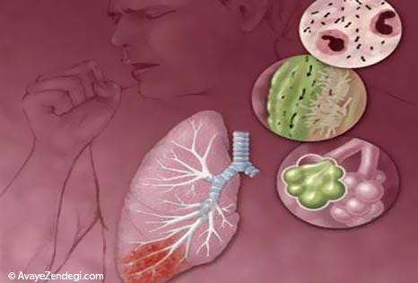 سینه پهلو و درمان آن در طب سنتی