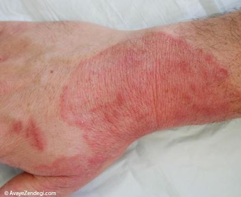 سوختگی و درمان آن در طب سنتی