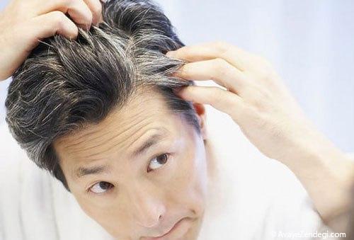 درمان سفید شدن مو  در طب سنتی